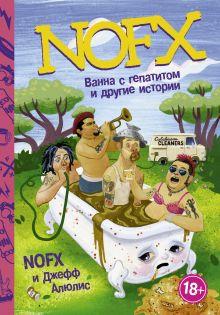 NOFX: Ванна с гепатитом и другие истории