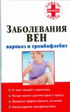 Заболевания вен: варикоз и тромбофлебит
