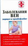 Заболевания вен: варикоз и тромбофлебит Старцев В.А.