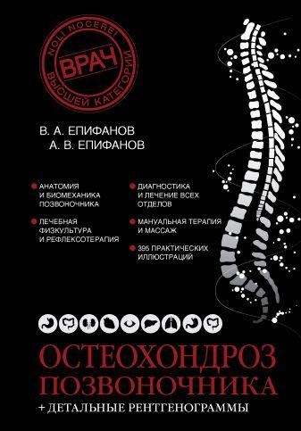 Епифанов В.А. - Остеохондроз позвоночника + детальные рентгенограммы обложка книги