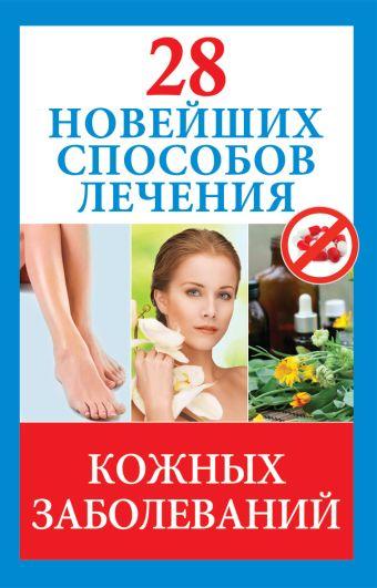 28 новейших способов лечения кожных заболеваний Голицына П.