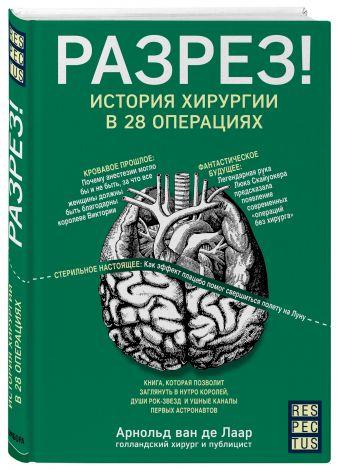 Арнольд ван де Лаар - Разрез! История хирургии в 28 операциях обложка книги