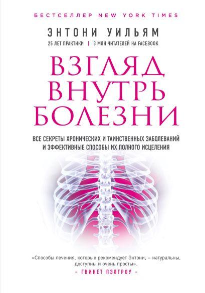 Взгляд внутрь болезни. Все секреты хронических и таинственных заболеваний и эффективные способы их полного исцеления (2-е издание) - фото 1